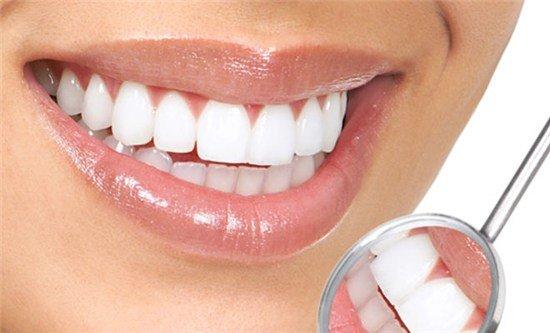 Стоматологические виниры
